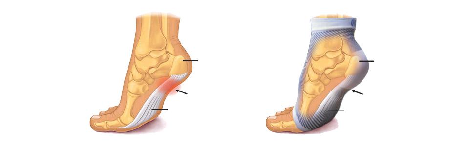 sock-diagram