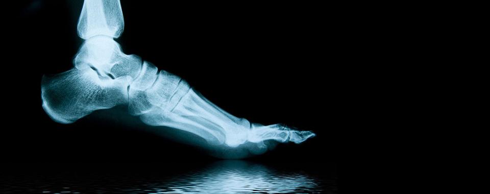 xray-foot